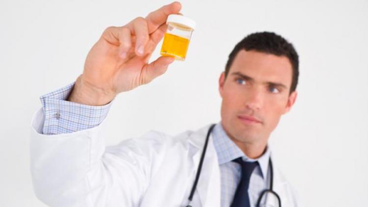 eiwitte-in-urine